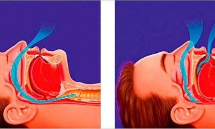 Apneia do Sono – Promoção da Saúde em Família