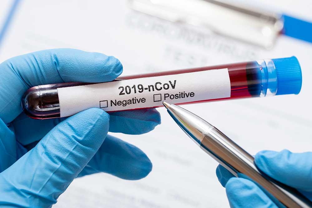 coronavirus-b